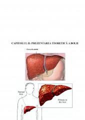 Ingrijirea pacientului cu ciroza hepatica